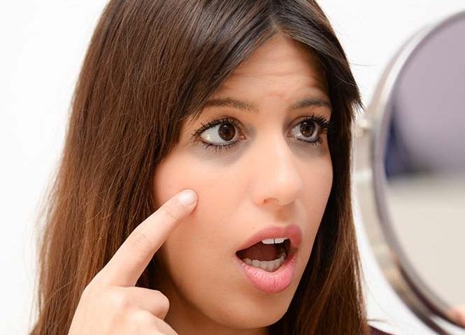 از دغدغه های عروس خانمها: گودی زیر چشم، علل و راه های رفع آن