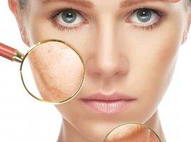 نوع پوست خود را بشناسید تا بتوانید از آن مراقبت کنید.