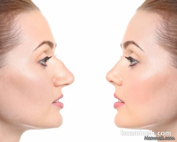 6 نکته درباره عمل بینی قبل از عروسی